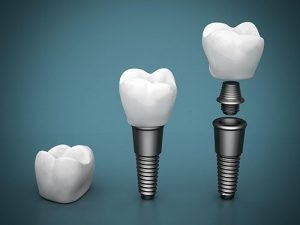 Dental Implants | Dentist Mayfield