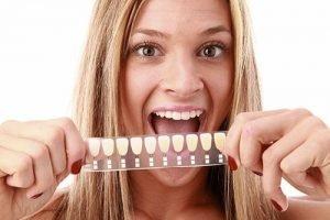 Dental Veneers   Dentist Mayfield