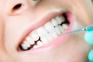 Gum Disease Treatment | Dentist Mayfield