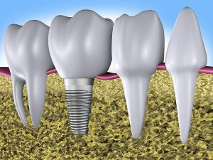 Implant Dentistry | Dentist Mayfield
