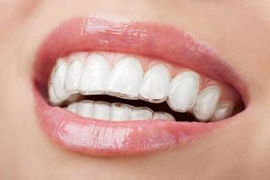 Invisalign | Dentist Mayfield