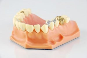 Lost or Damaged Dental Crown Inlays and Onlays