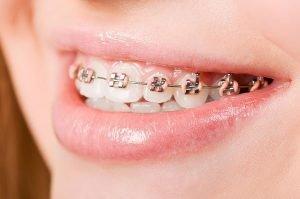 Orthodontics | Dentist Mayfield
