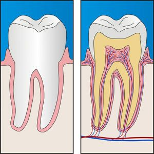 Root Canal Treatment | Dentist Mayfield