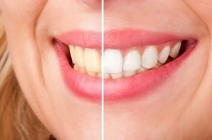 Teeth Whitening | Dentist Mayfield