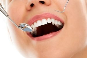 Tooth Coloured Fillings | Dentist Mayfield