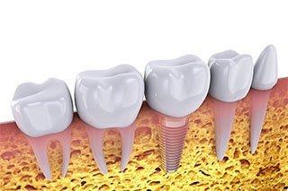 Dental Implants Procedure In Mayfield