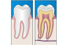 Oral Hygiene Habits | Dentist Mayfield