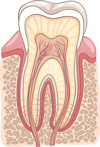 Signs a Root Canal may be Necessary Dentist Mayfield