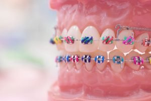 Orthodontics and Braces Dentist Mayfield